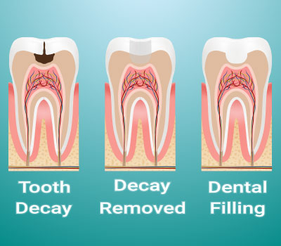 Tooth Fillings